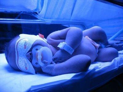 Гипербиллирубинемия у новорожденных