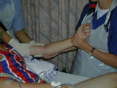 Вывих локтевого сустава у ребенка